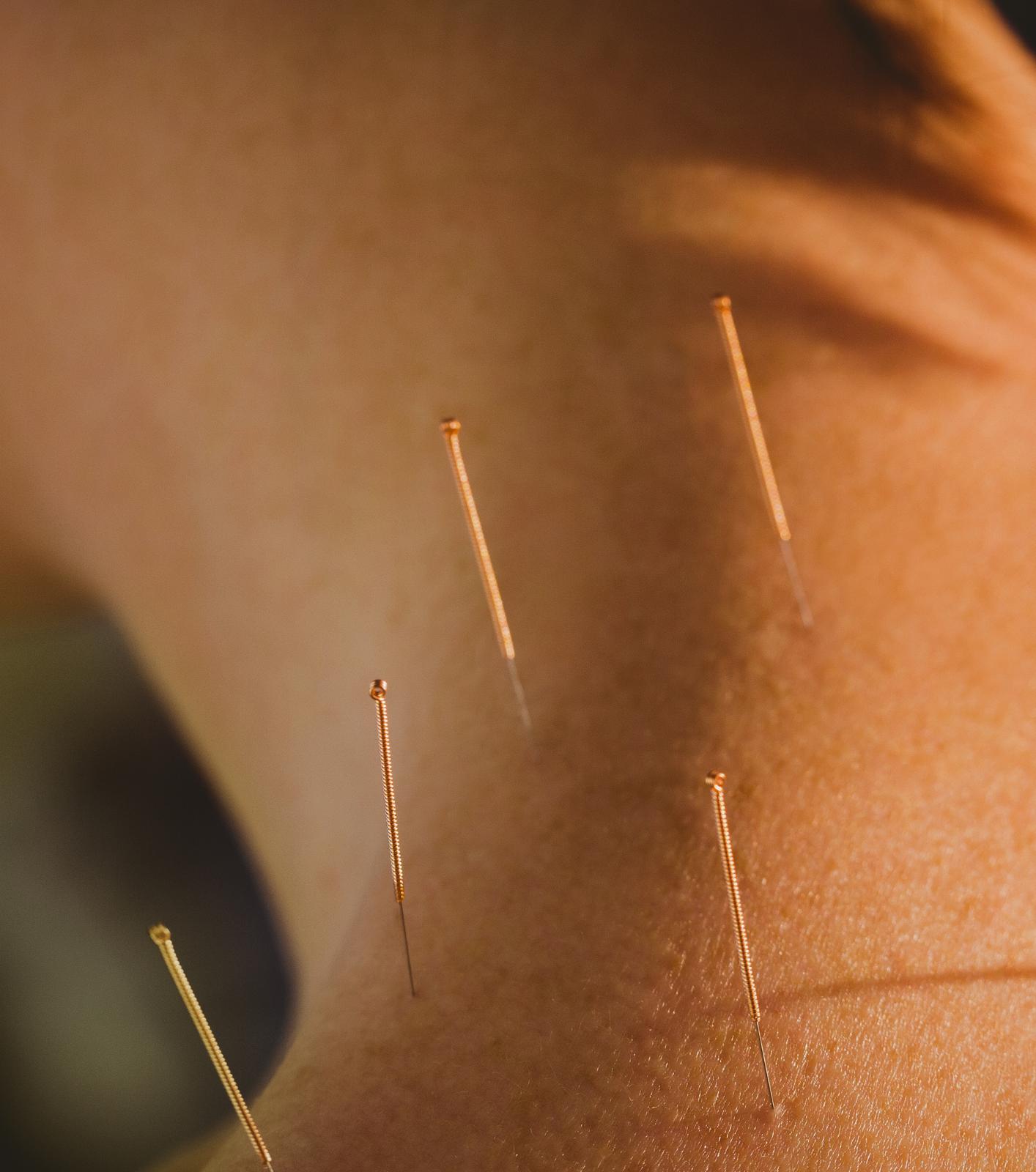 daniel-mené-acupuncture-barcelona4